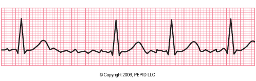 Atrial Fibrillation CR